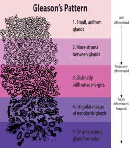 Prostate Cancer Gleason Score
