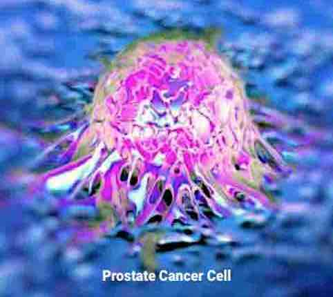 Prostate Cancer Cell